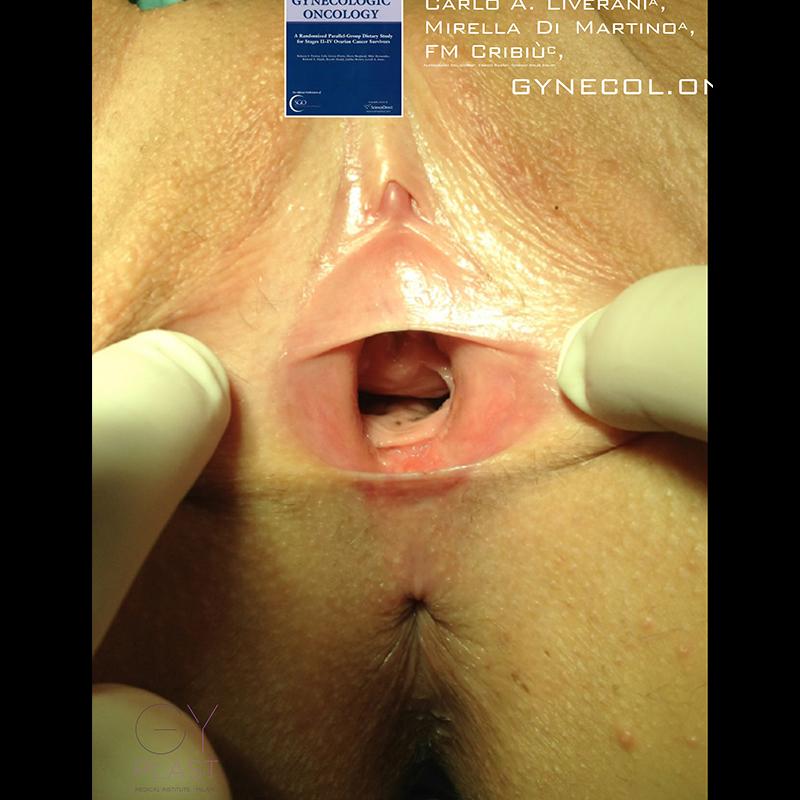 pre post ginecoplastica funzionale3