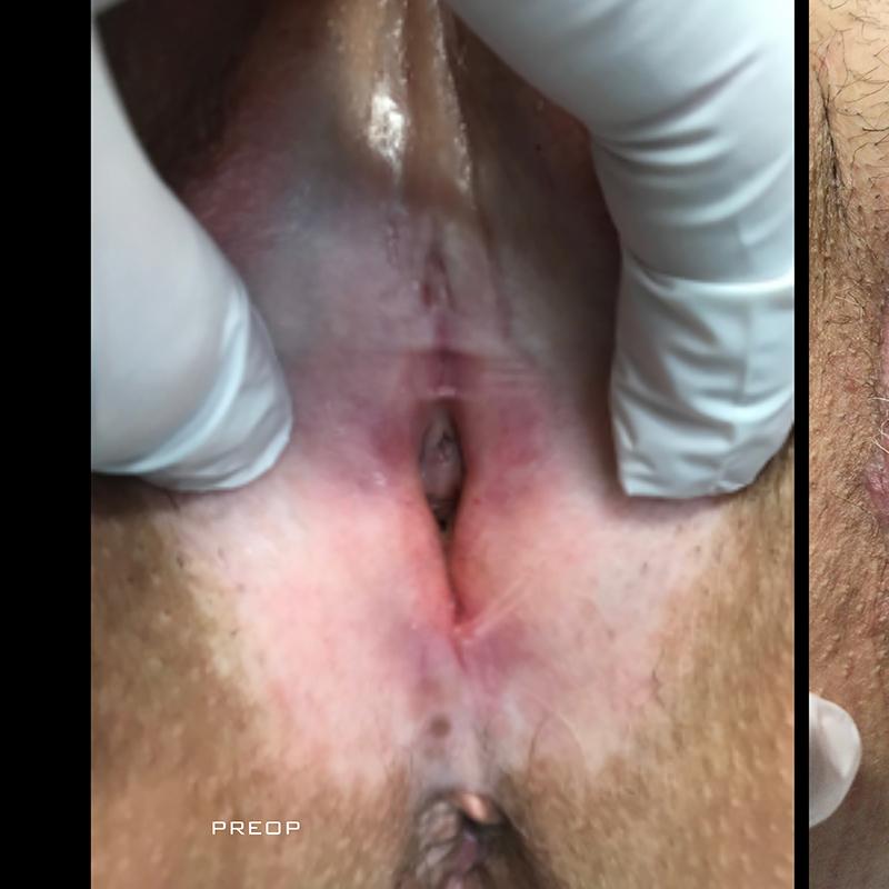 pre post ginecoplastica funzionale5