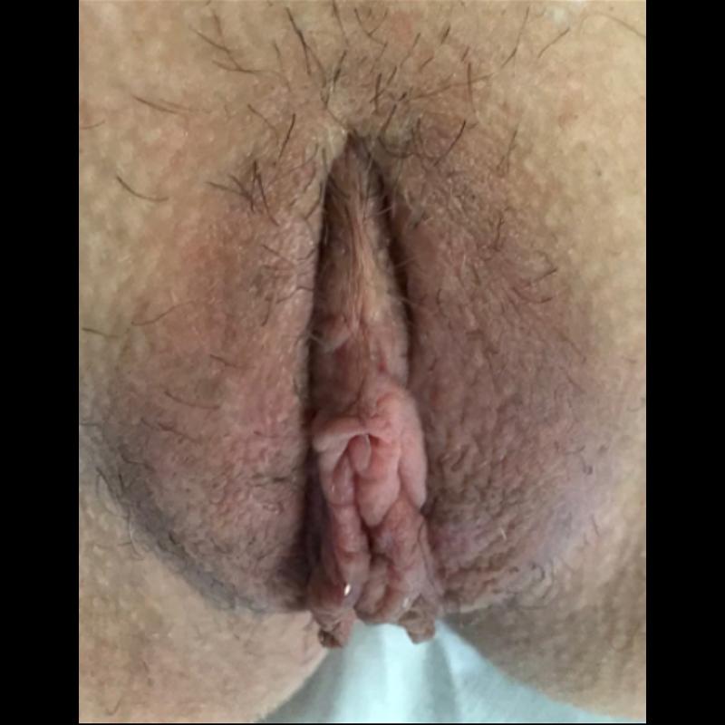 pre post ginecoplastica4