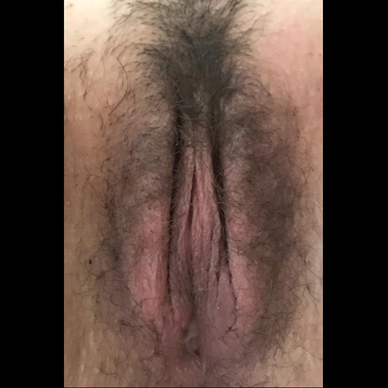 pre post ginecoplastica8